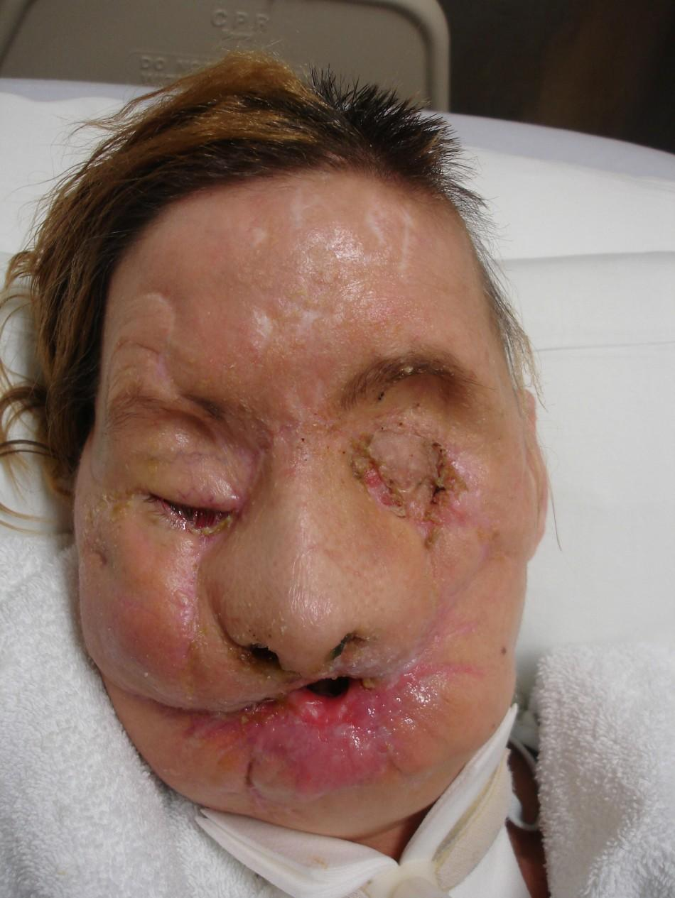 Face transplant recipient Charla Nash is pictured after her injury, in this undated photograph released on June 10, 2011.