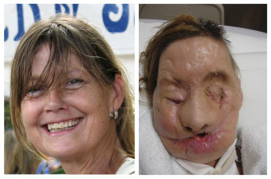 A combination photo shows face transplant recipient Charla Nash, of Stamford, Connecticut, before (L) and after her injury, in these undated photographs released on June 10, 2011.