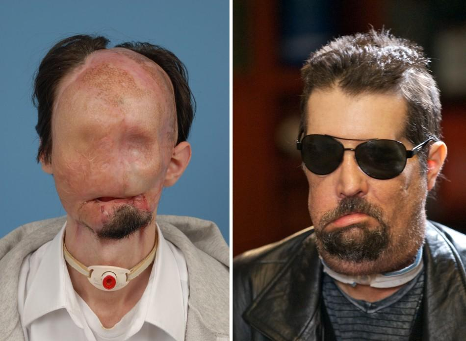 Face transplant patient Dallas Wiens is seen before (L) his transplant and after (R) in this combination handout image released to Reuters on May 9, 2011.