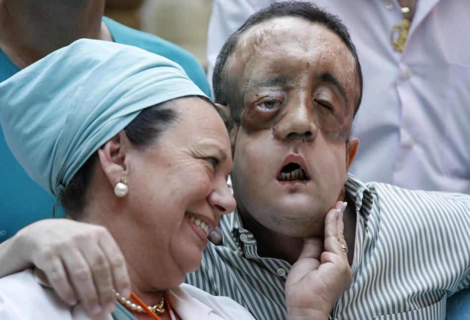 Face transplant recipient Rafael embraces a nurse during a news conference at Virgen del Rocio hospital in Seville