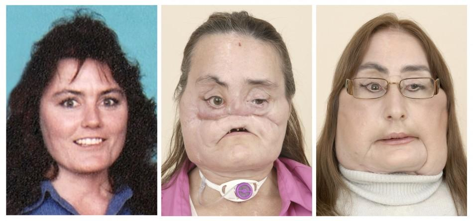 Face transplant patient Connie Culp is seen in this combination photo made of handouts released to Reuters by Cleveland Clinic on May 6, 2009.