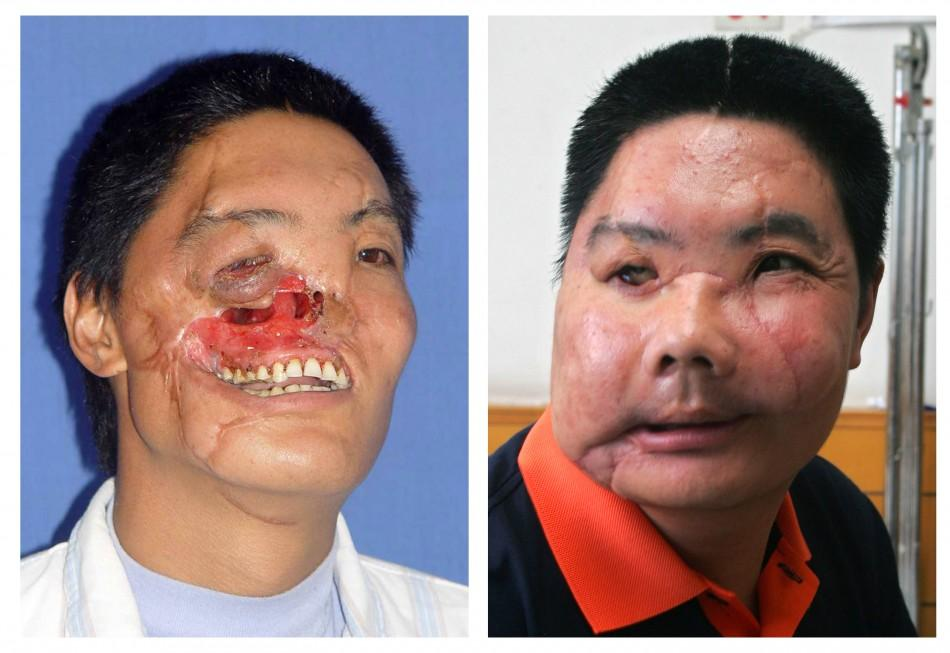A combination photograph shows a man before and after his operation when he received a face transplant, in Xian, Shaanzi province.