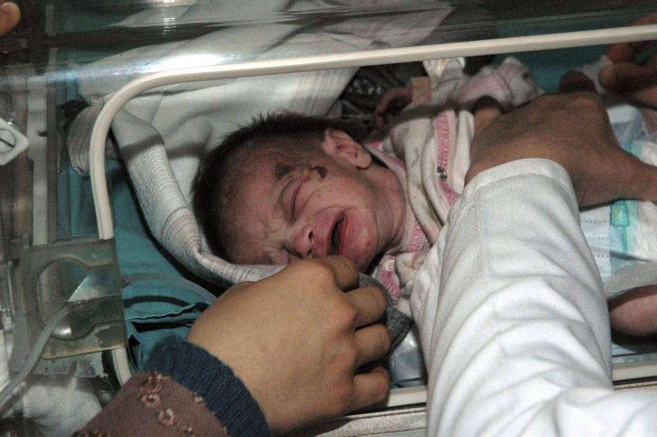 Turkey Earthquake: Miraculous Rescue of a 2-Week-Old Baby Found Alive After 48 Hours [PHOTOS]