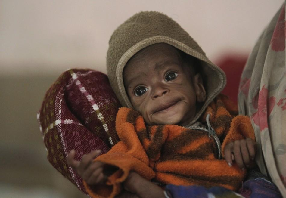 Four month-old Vishakha, who weighs less than 5 pounds, is carried into a clinic in central India