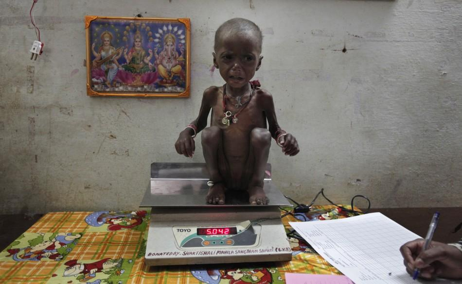 2 year-old Rajni, who is severely malnourished, is weighed at a clinic in central India