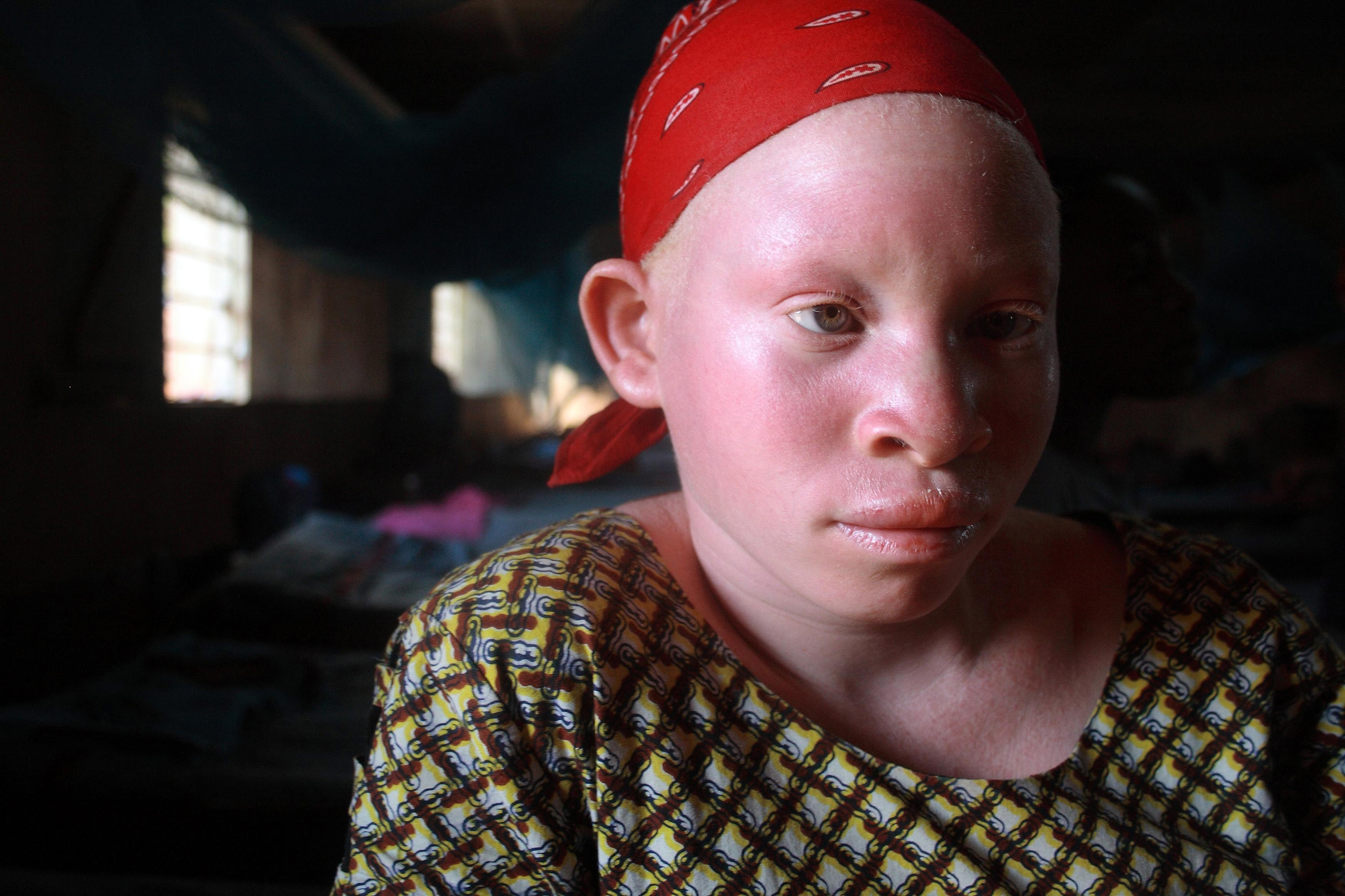 Tanzania Teen With Albinism