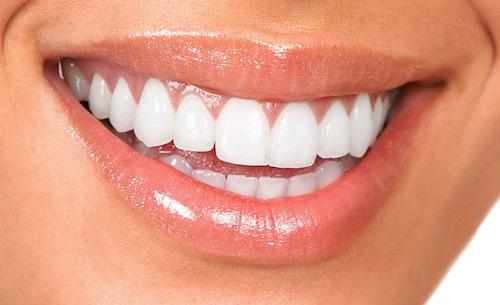 Teeth Whitening withDr. Shervin Louie