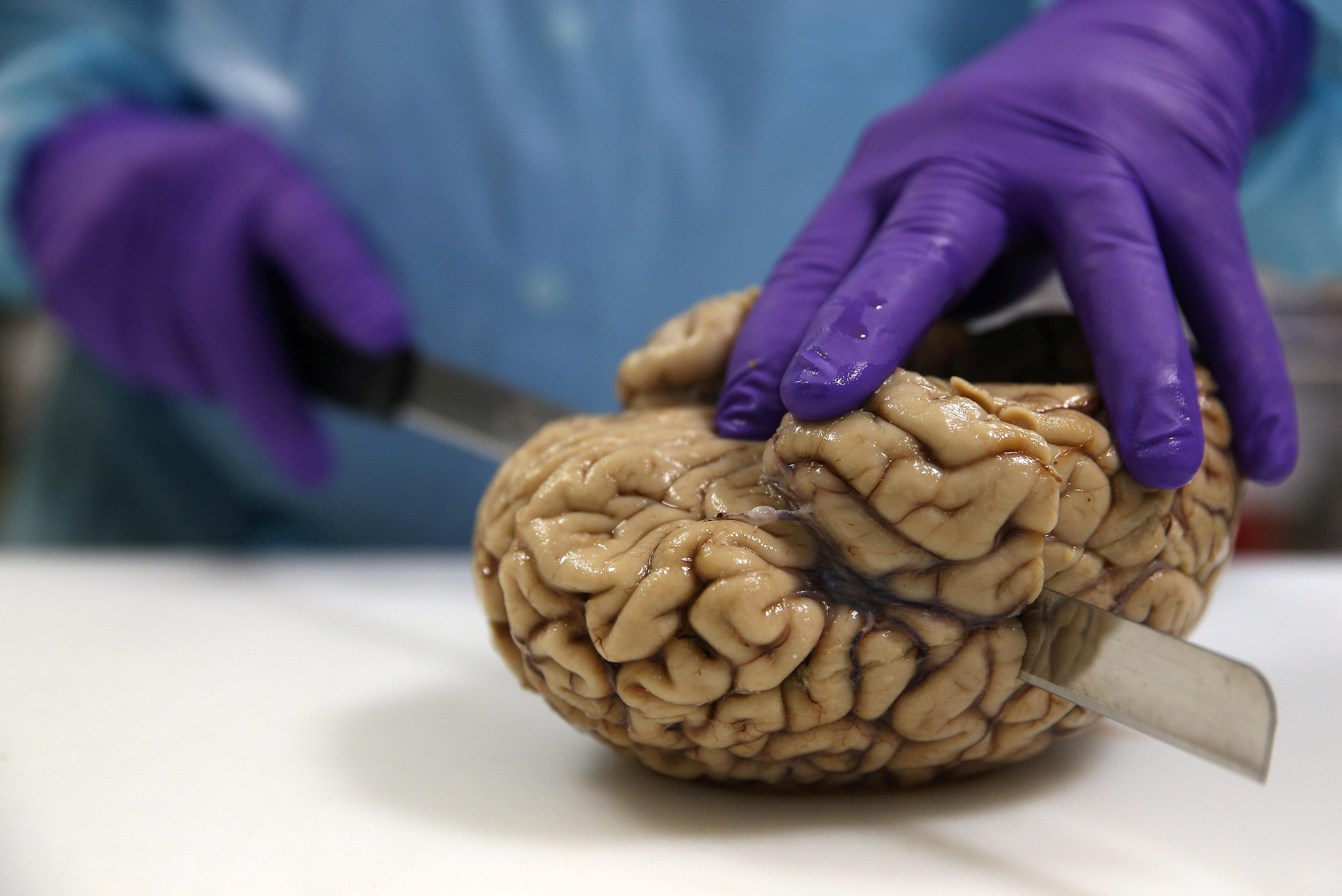 Brain Games Don't Make You Smarter In Old Age, But These 3 Things Do