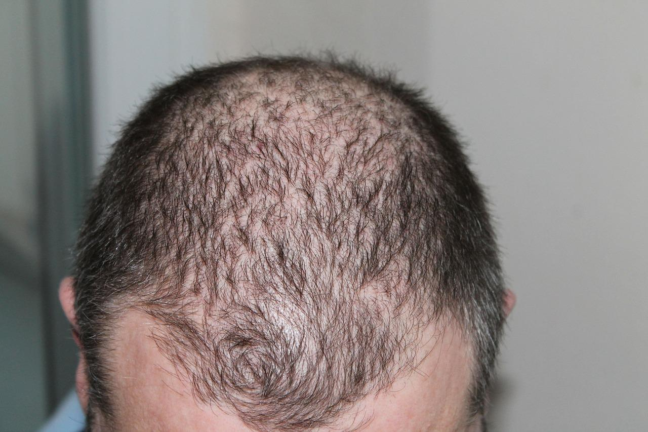 working for long hours contribute to rapid hair loss