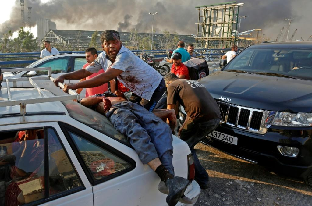 An injured man lies at the back of a car before being rushed away from the scene of a massive explosion at the port