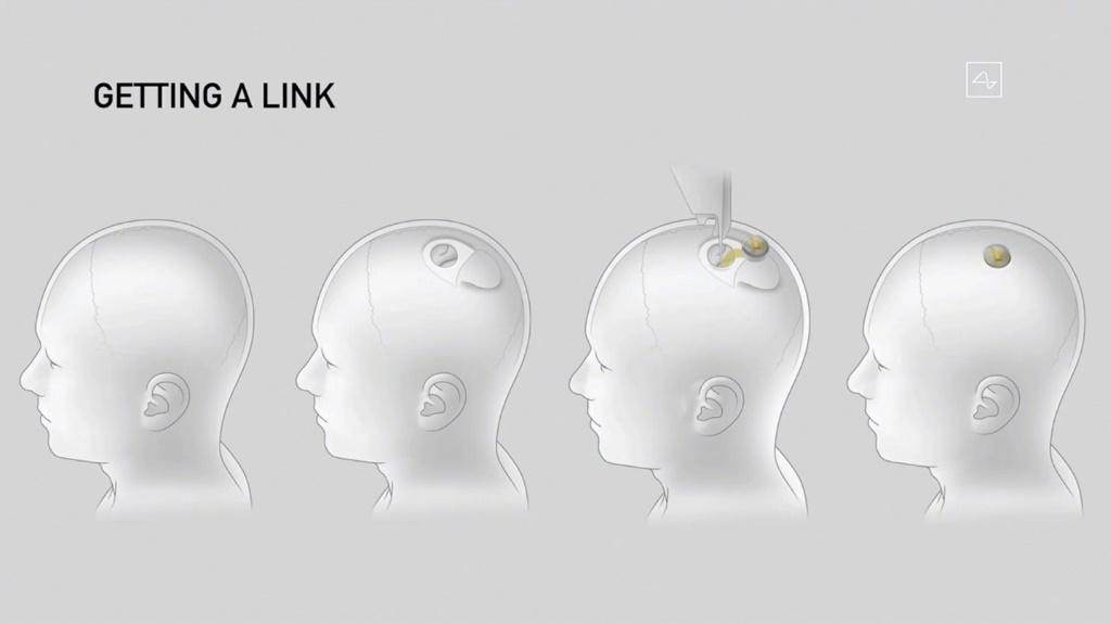 This video grab made from the online Neuralink livestream shows a drawing of the different steps of the implantation of a Neuralink device seen during a presentation on August 28, 2020