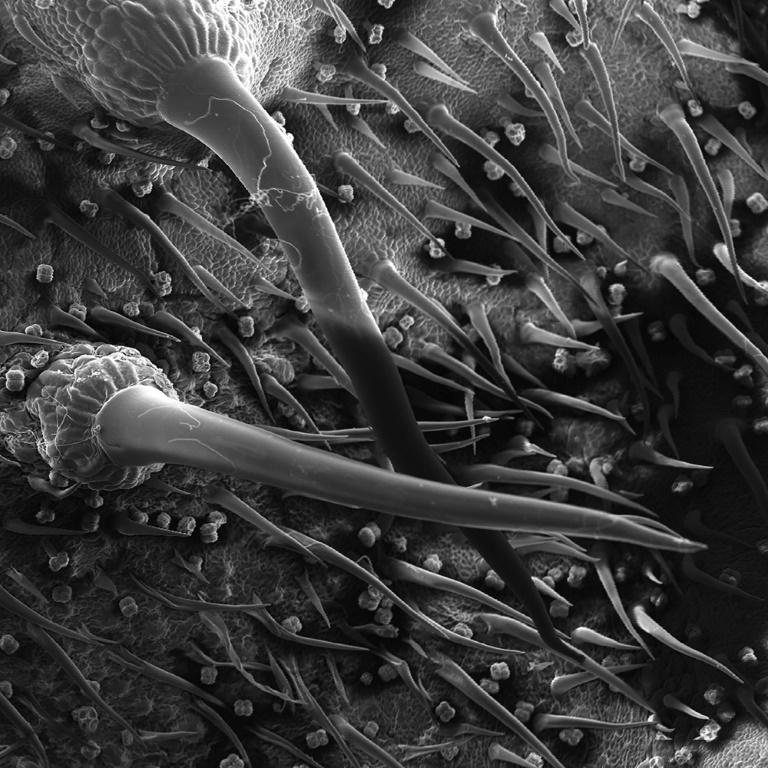 Researchers say the long-lasting pain inflicted by the tree may be explained by its toxins permanently altering the chemical makeup of the affected sensory neurons