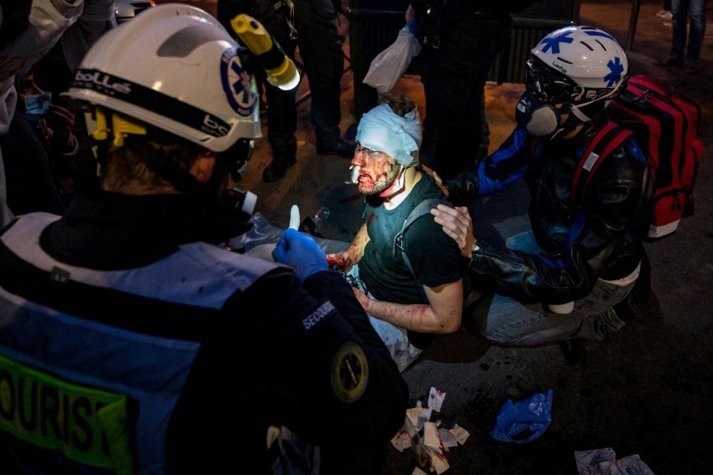 Ameer Alhalbi, a freelance photographer who worked for Polka Magazine and AFP, was wounded covering the Paris demonstrations