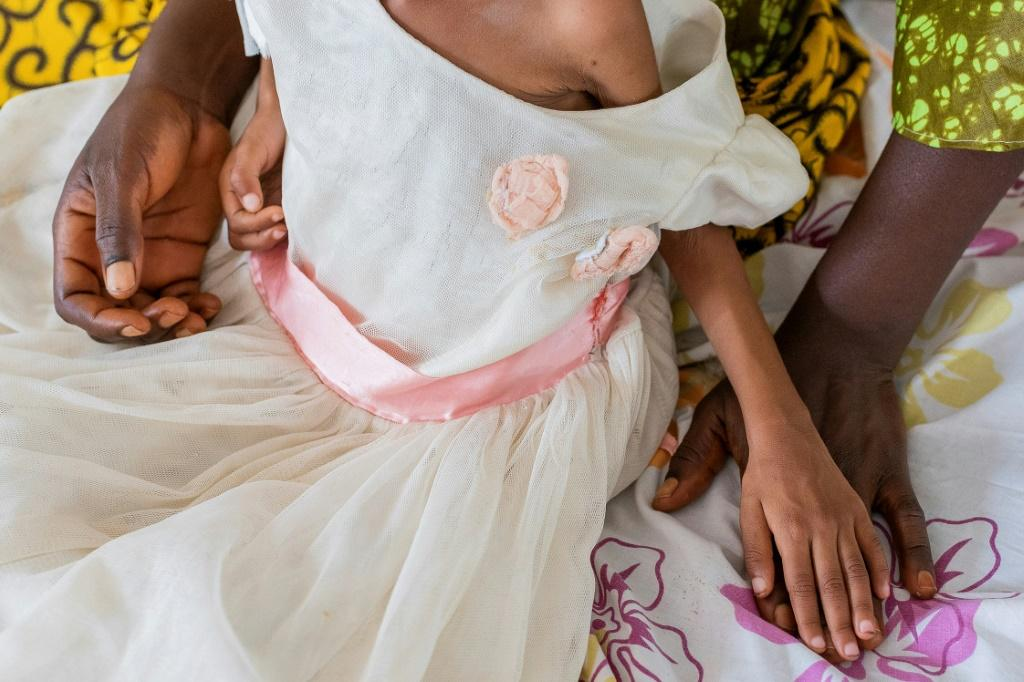Doctors in the Kasai often treat children who have been reduced to virtual skeletons by malnutrition