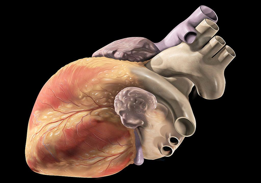Predicting Heart Failure: 'HeartLogic' Device Can Detect Problem More Than A Month In Advance