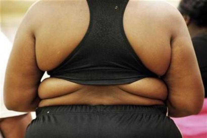 Obese Individuals at Health Risk