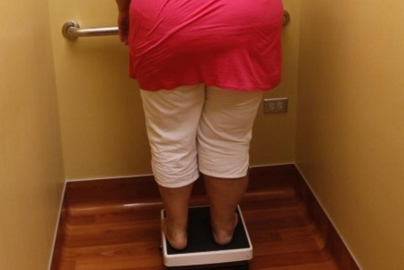 Carolyn Dawson, bariatric surgery patient, looks at her weight reading 296.6 lbs.