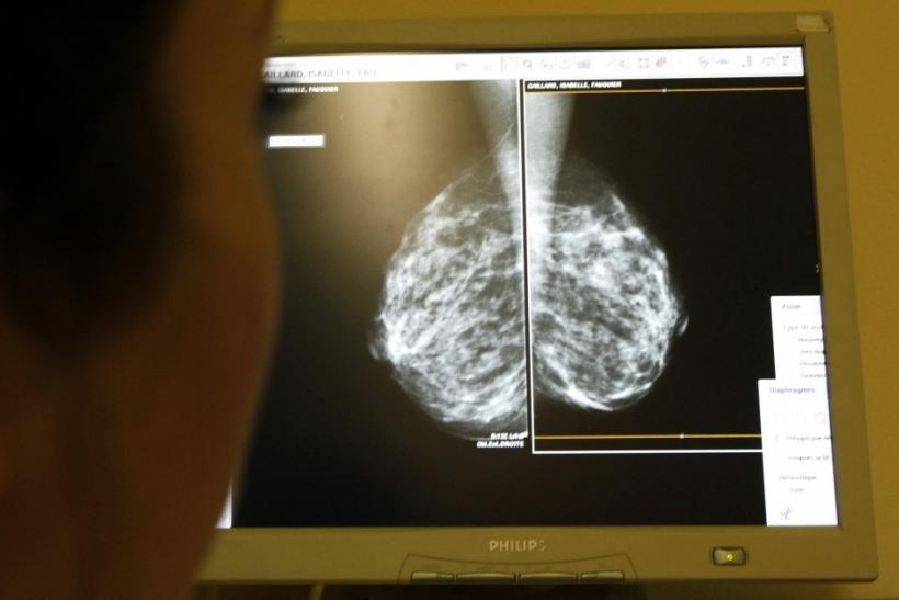 Woman's mammogram