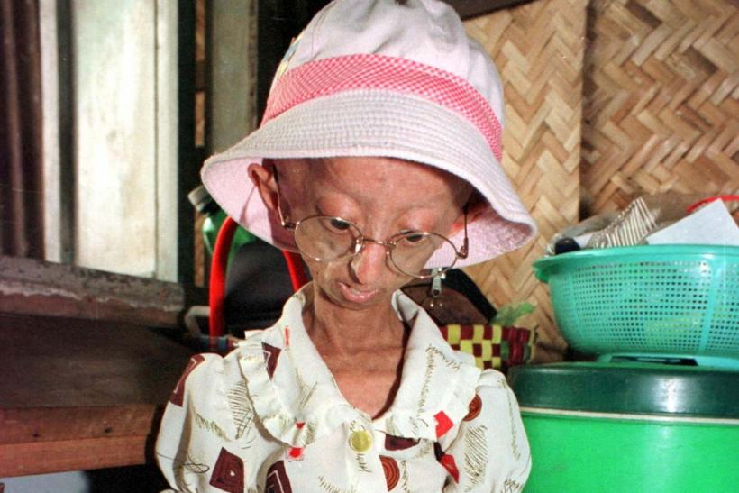Progeria, the rapid premature aging in children