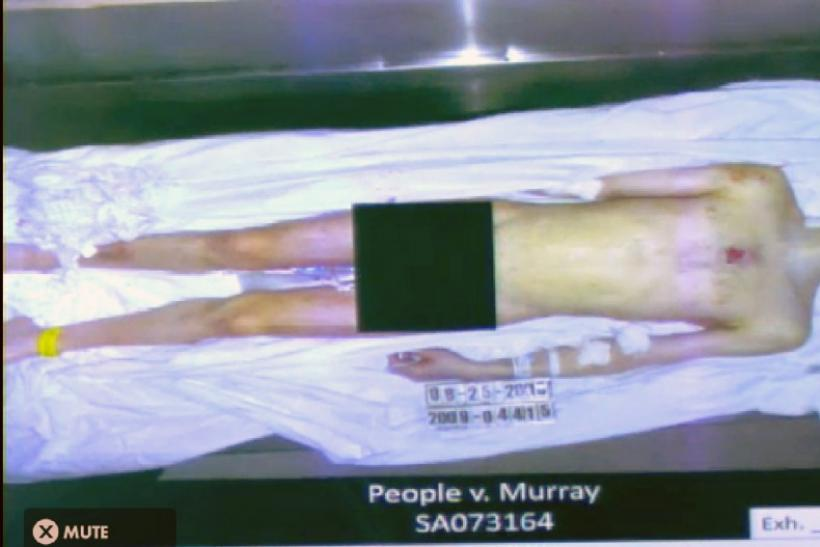 Michael Jackson on Autopsy Table
