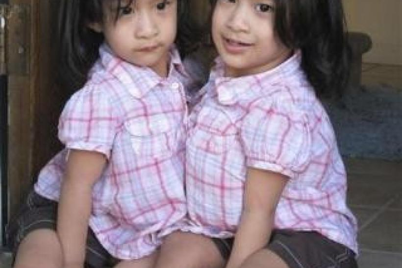 Conjoined twins Angelica and Angelina Sabuco are shown in this family photo