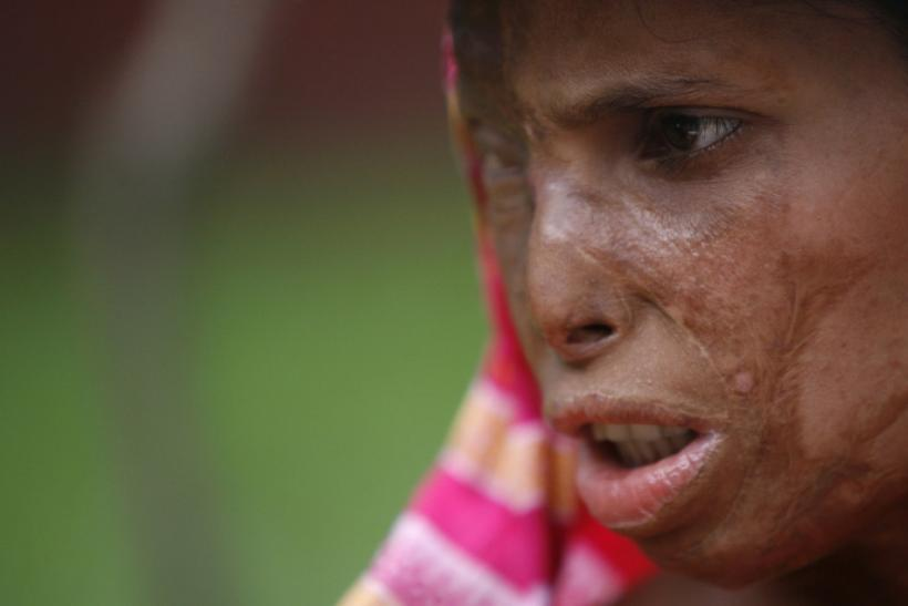 Khodeza Begum attends an international conference of acid survivors in Dhaka