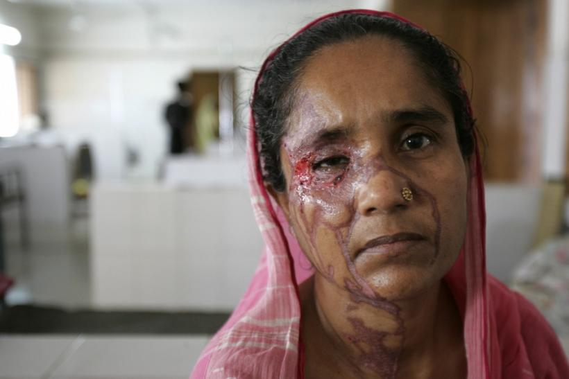 Acid victim Begum poses inside the Dhaka Medical College Hospital
