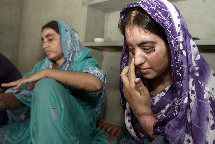Sakeena (L), suffering from burns to 70 percent of her body from when her husband