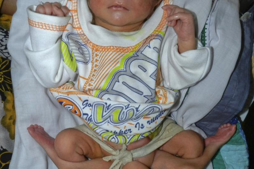 Six-Legged Baby Born Born in Pakistan