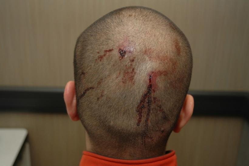 George Zimmerman's Head