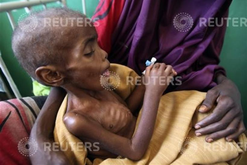 A Somali woman sits with her malnourished child at Banadir hospital in capital Mogadishu