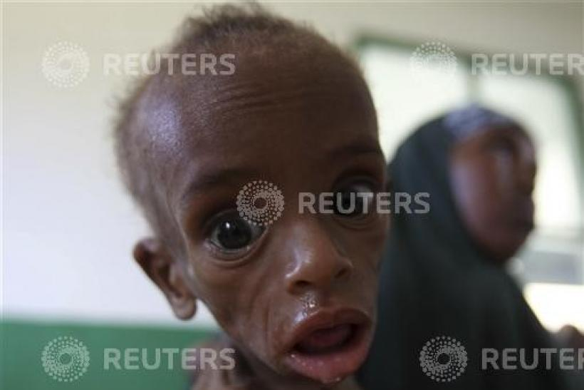 A malnourished Somali child looks into the camera inside a paediatric ward at the Banadir hospital in capital Mogadishu