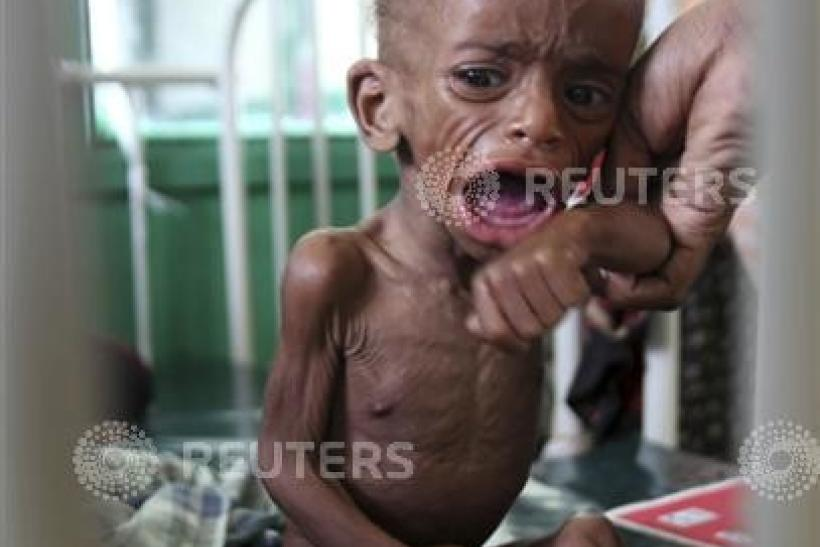 A malnourished Somali child cries inside a paediatric ward at the Banadir hospital in the capital Mogadishu