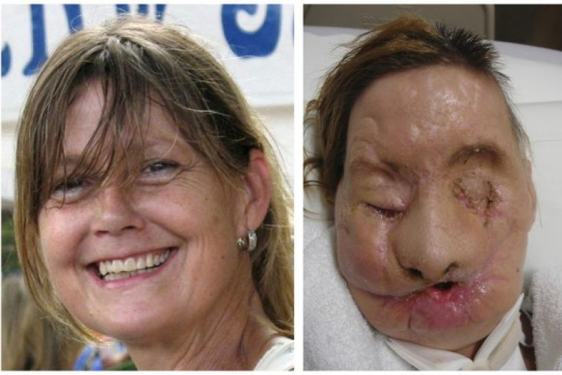 Victim of Chimpanzee Attack Has A New Face, But Lost Her