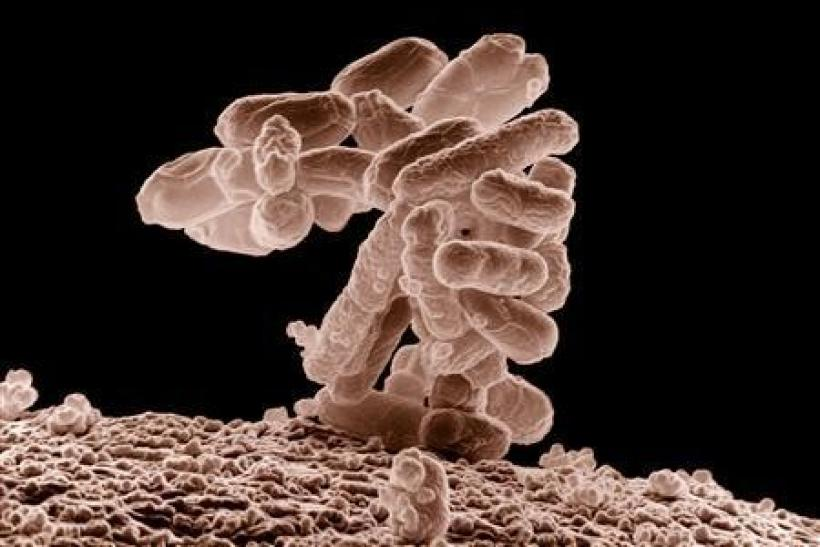 E. coli bacteria is seen in an image taken by an electron microscope.
