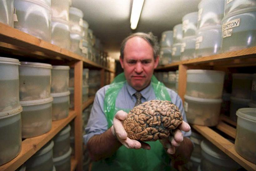 University of Texas missing brains