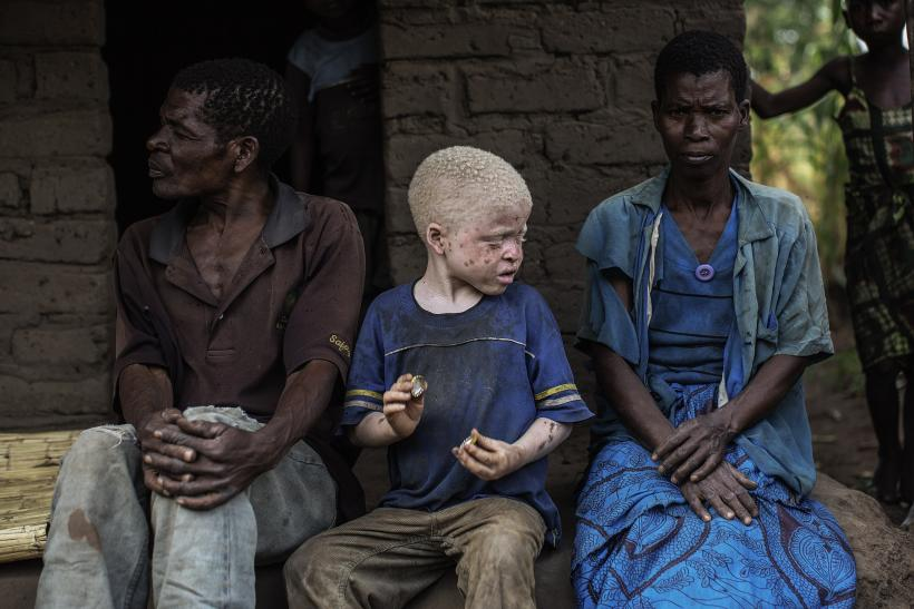 Albino child in Malawi