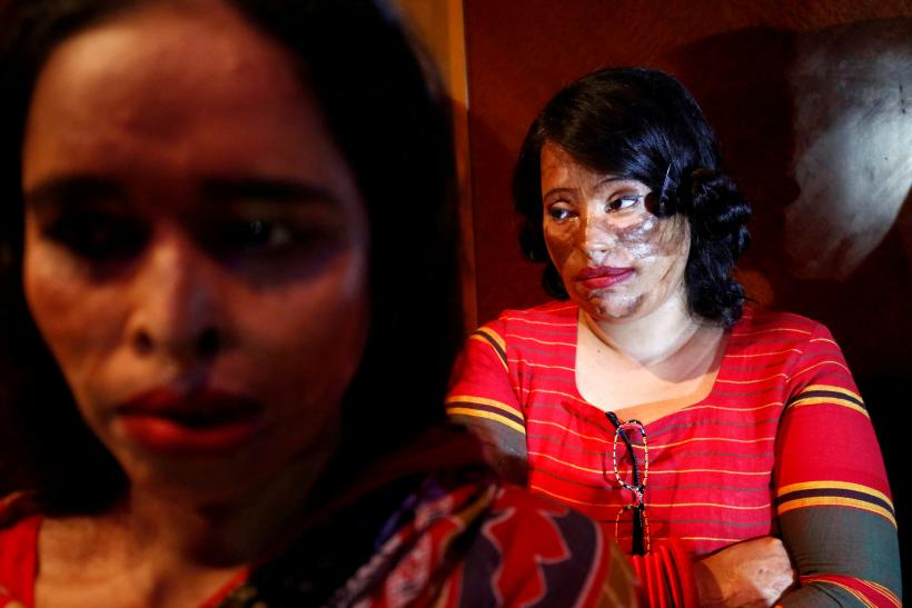 Acid attack survivor
