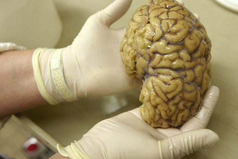 Brain Training Does Not Improve Neural Activity Study Finds 5 Ways