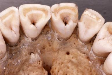 Shovel-Shapes Incisors