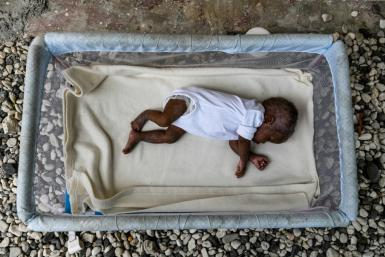 This foster child suffering from malnutrition is one of two hosted by Rose Boncoeur, in Port-au-Prince, Haiti, even though she gets no financial support to feed and clothe them