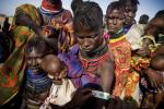 Millions of Malnourished Children in Horn of Africa are at Risk of Dying (PHOTOS)