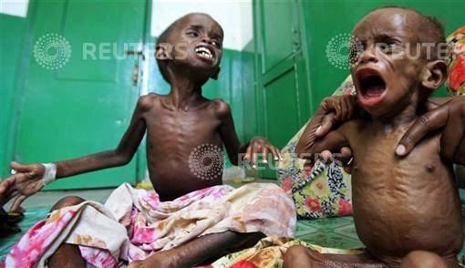 Malnourished Somali children cry inside a paediatric ward at the Banadir hospital in Mogadishu