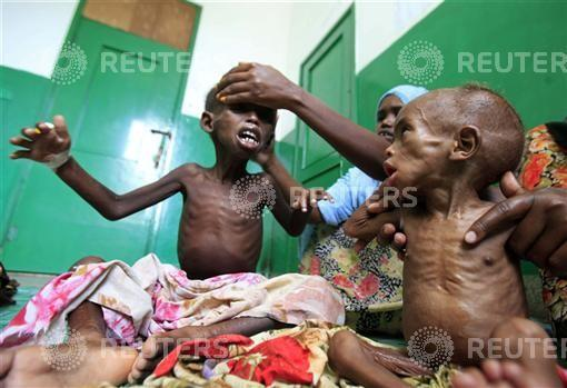 Malnourished Somali children are seen inside a paediatric ward at the Banadir hospital in Mogadishu