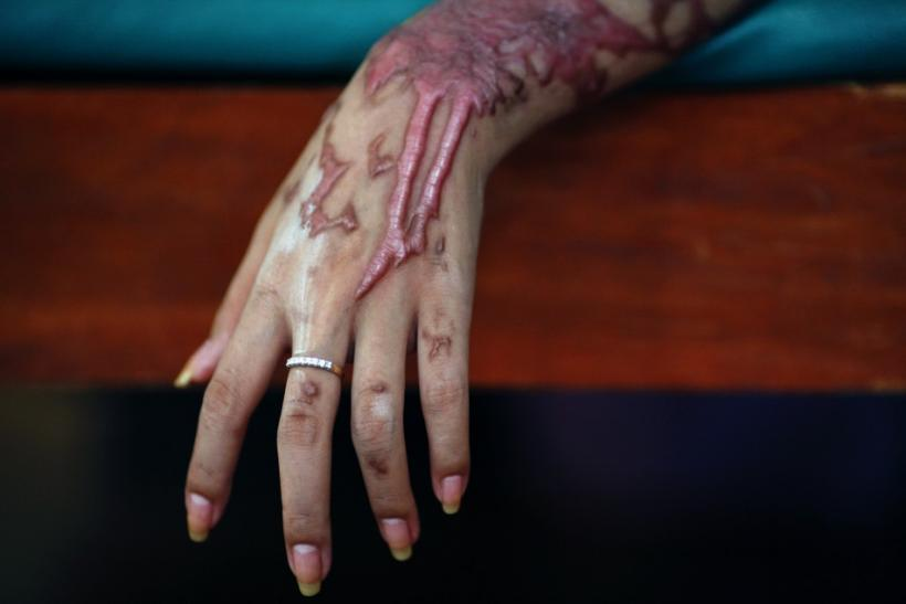 An acid attack victim