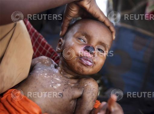 An internally displaced woman holds her malnourished son at a camp in Somalia's capital Mogadishu