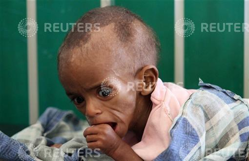 A malnourished Somali child rests inside the paediatric ward at the Banadir hospital in southern Mogadishu