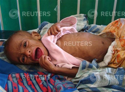 A malnourished Somali child cries inside the paediatric ward at the Banadir hospital in southern Mogadishu