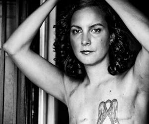 Mastectomy Photos Treated As Porn, Banned From Facebook