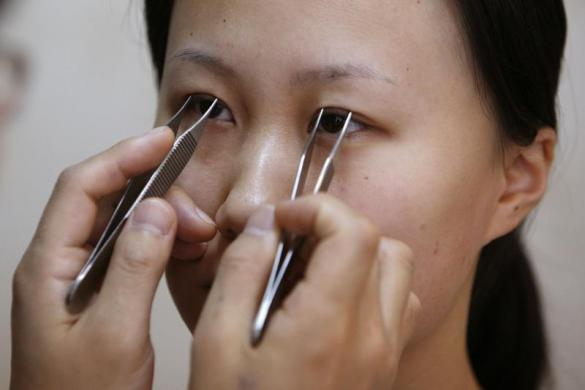 Cosmetic Surgery In China